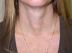 scar after thyroid surgery minimally invasive thyroid surgery